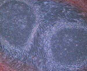 iPS hücreleri